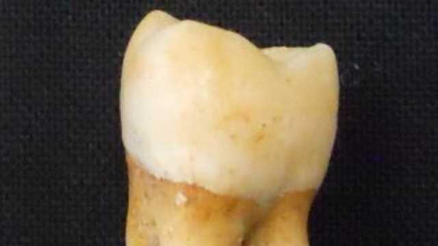 مینای دندان؛ بهترین راه برای تعیین جنسیت