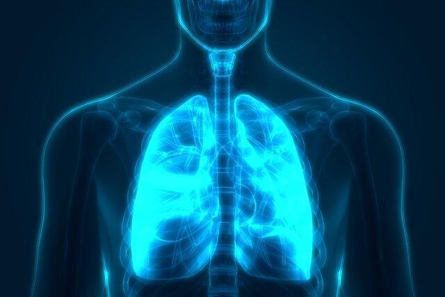 تشخیص یک نوع از سرطان با آزمایش بازدم