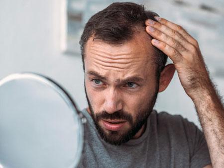 روش های جایگزین کاشت مو